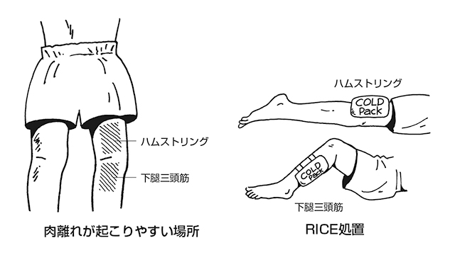 RICE処置・主なケガの応急処置(後編) | 全日本剣道連盟 AJKF